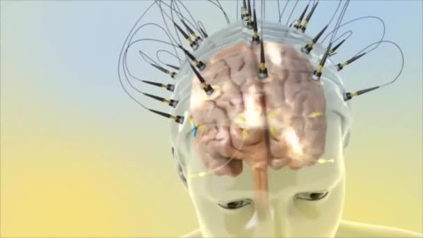 3d Animierte Darstellung der Funktionsweise von Hirn-Hörsignalen