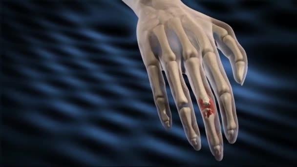Achronická progresivní choroba způsobující zánět kloubů a způsobuje bolestivou deformitu a nehybnost, zejména v prstech, zápěstí, nohách a kotníky.