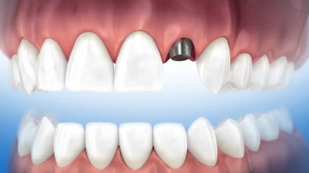 Instalační proces implantátu a korunky. 3D animovaná video