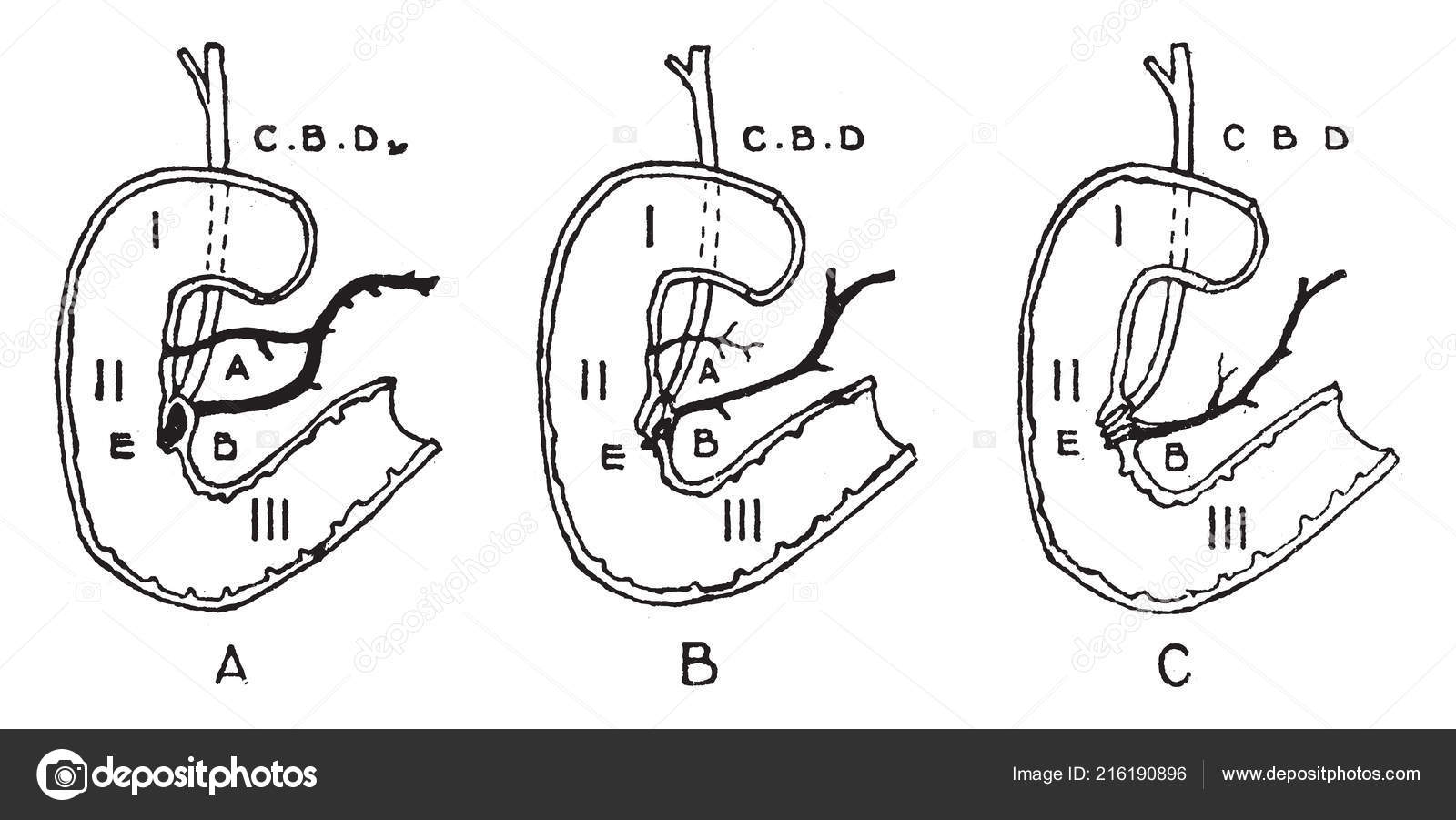 Diagram Represents Variations Termination Pancreatic Bile ... on wiring diagram, termination icon, termination flowchart, termination process, termination sequence, electricity distribution, termination switch wiring,