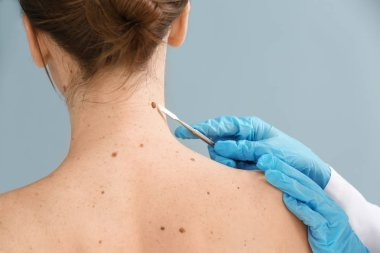 Doctor with lancet going to remove mole from patient's skin