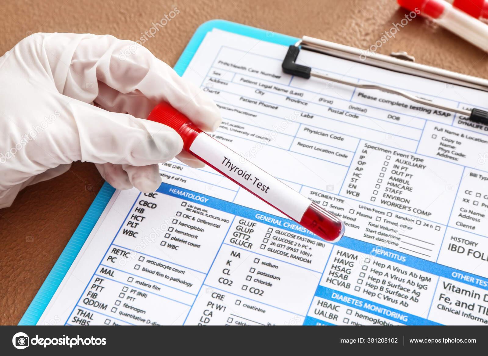 Новгороде нижнем в анализы лабораторные крови анализ крови биохимический chol
