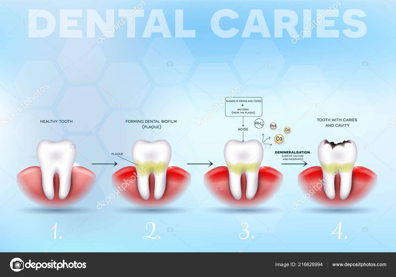 tooth decay dental caries formation detailed diagram healthy tooth till —  stock vector