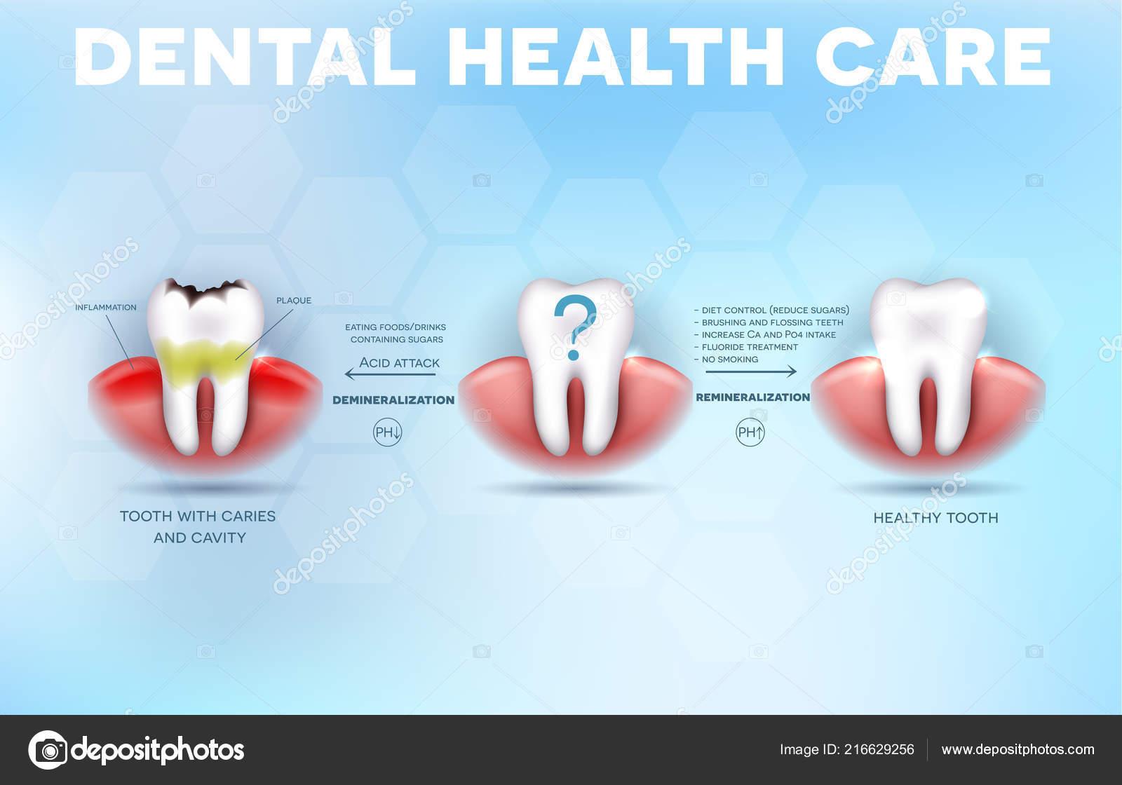 d18fe939b5f Zubní Zdravotní Péče Tipy Jak Zabránit Zubní Kaz Formace Kyselina —  Stockový vektor