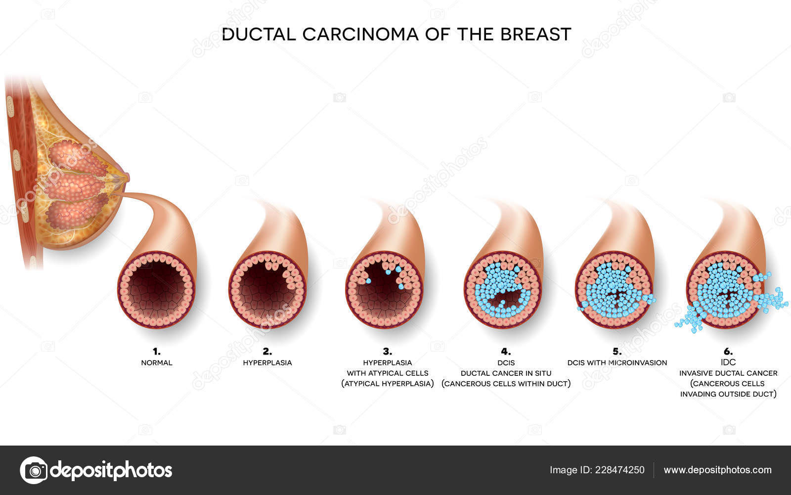 Ductal Carcinoma Breast Cross Section Anatomy Detailed Anatomy
