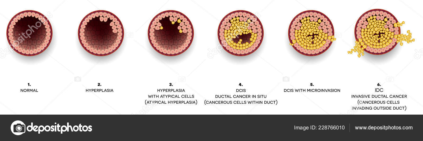 Breast Cancer Atypical Cells - Porn Archive-1434