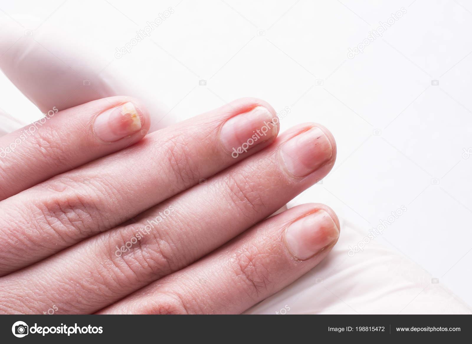 Onycholysis Isolated White Background Mechanical Damage Nail Plate ...
