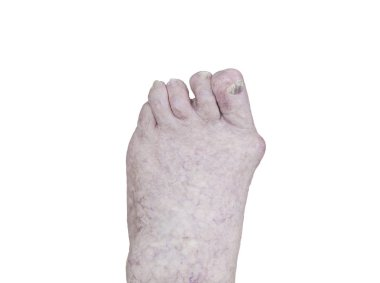 closeup of a senior person's foot with arthritis, damaged nails and athlete's foot isolated on white