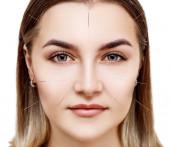 Nő átesett akupunktúrás kezelés.
