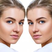 weibliche Nase vor und nach kosmetischen Eingriffen.