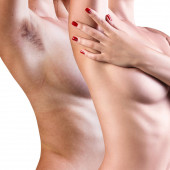 Photo Woman showing her armpit before and after hair removal.