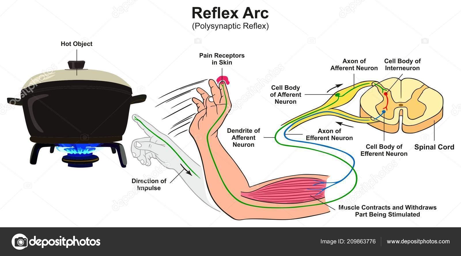 Reflex Arc Infographic Diagram Example Polysynaptic Human Body Hand Touching Stock Vector