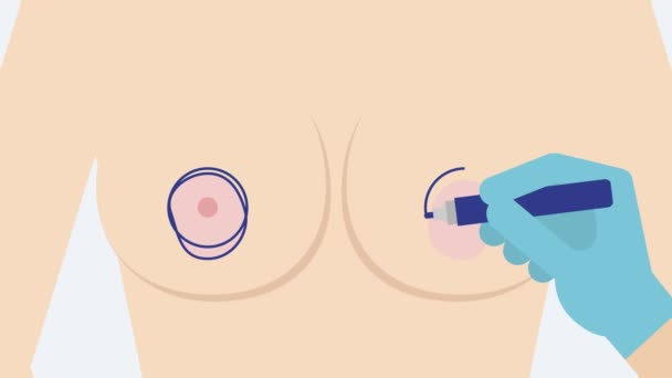 Asymmetrical nipple areola (correction surgery). Mammology 2D animation