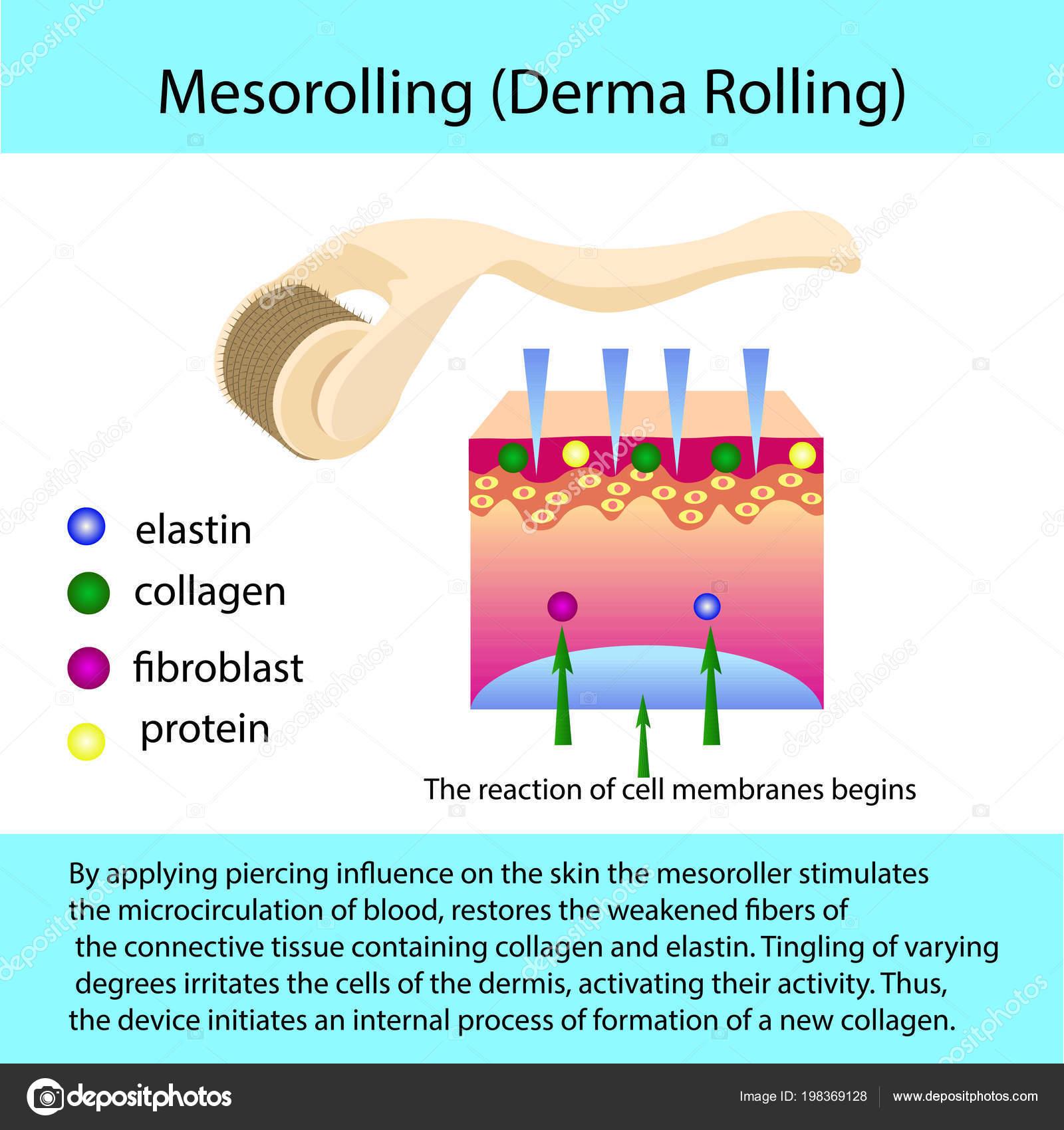 Proceso De Mesorolling Con Una Estructura Celular