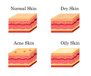 Skin types icons set. Vector stock illustration