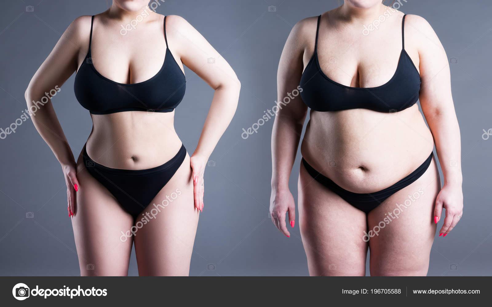 perdita di peso eccessiva dopo chirurgia bariatrica