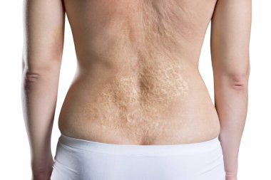 Woman with a large scar after burn on the back, rear view, isolated on white background