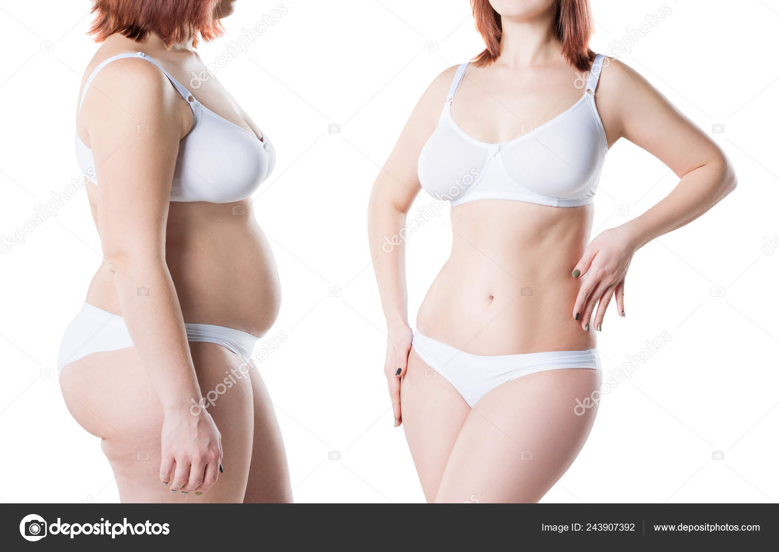 Woman Body Weight Loss Isolated White Background Plastic Surgery
