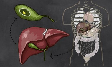 Gallstones Illustration with Torso, Liver and Gall bladder to show Size and Details