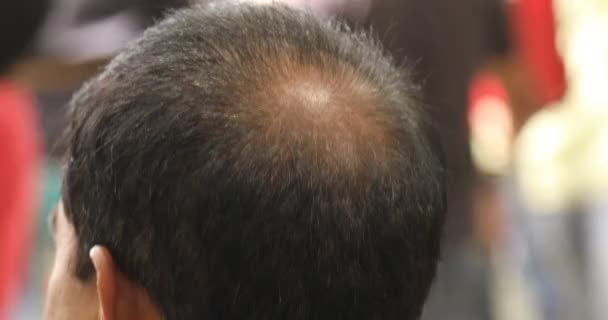 Muž s holohlavý hlavou