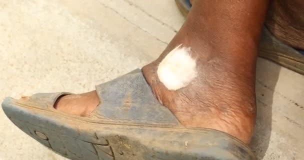 staré ženy noha s ranou