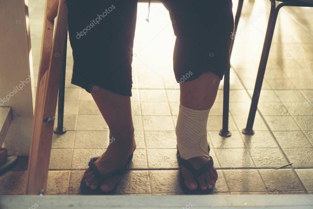 Legs of patients wearing a splint