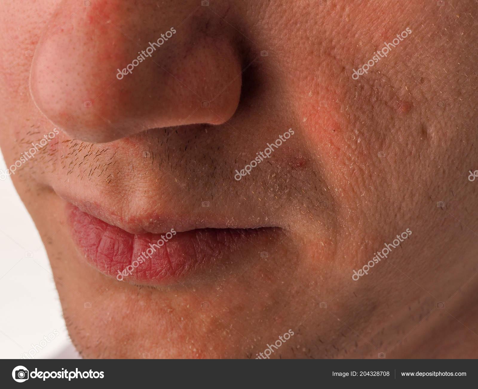 Nahaufnahme Gesicht Des Jungen Menschen Mit Sehr Trockener Haut