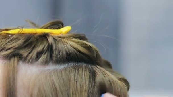der Kopf einer erwachsenen europäischen Frau mit Problemhaut, Schuppen im Haar