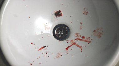Close-up of sink with blood drops. Small drops of blood from nose and fleece in white shell. Human health affected