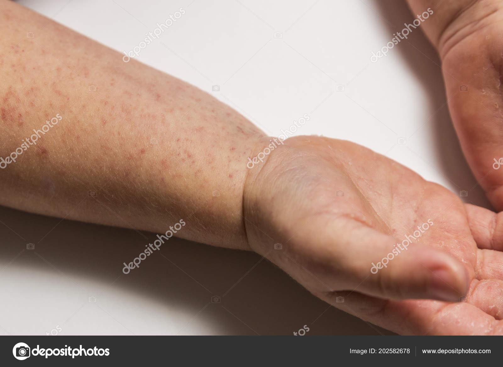 små utslag på händerna