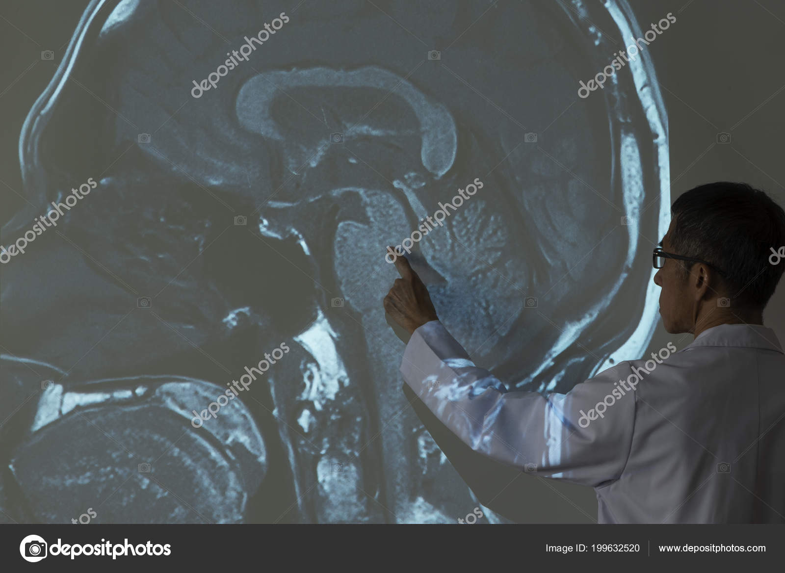 Médico Demostrando Irm Anatomía Del Cerebro Humano Proyector ...