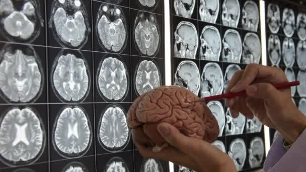 Doktor držel mozku a výuky anatomie mozku na Mri zobrazovací