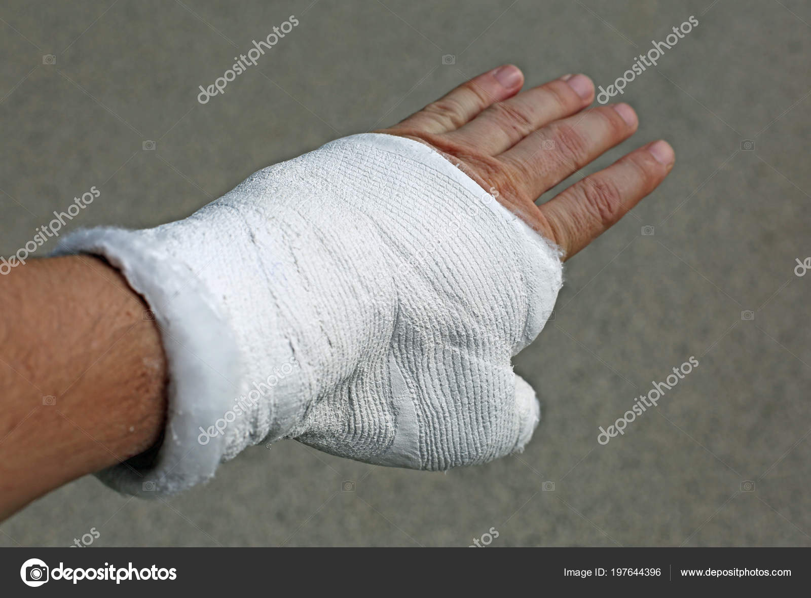 Hand Plaster Cast Breaking Phalanx — Stock Photo
