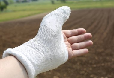 Man's hand in plaster and fully invoiced especially the thumb and an agricultural background