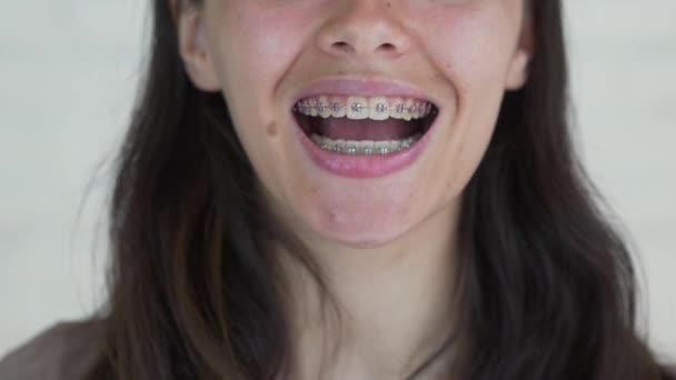 junges Mädchen mit Zahnspange, das in die Kamera blickt und lächelt. Nahaufnahme.