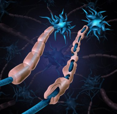 Multiple sclerosis damaged myelin or MS autoimmune disease with healthy nerve with exposed fibre with scarrred cell sheath loss as a 3D illustration.