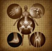 Lidské bolesti kloubů a anatomie koncepce jako tělo bolesti a poranění nebo artritida nemoci symbol pro zdravotní péči a příznaky stárnutí nebo sportovní a pracovní úraz v grunge textury wth 3d ilustrace prvky..