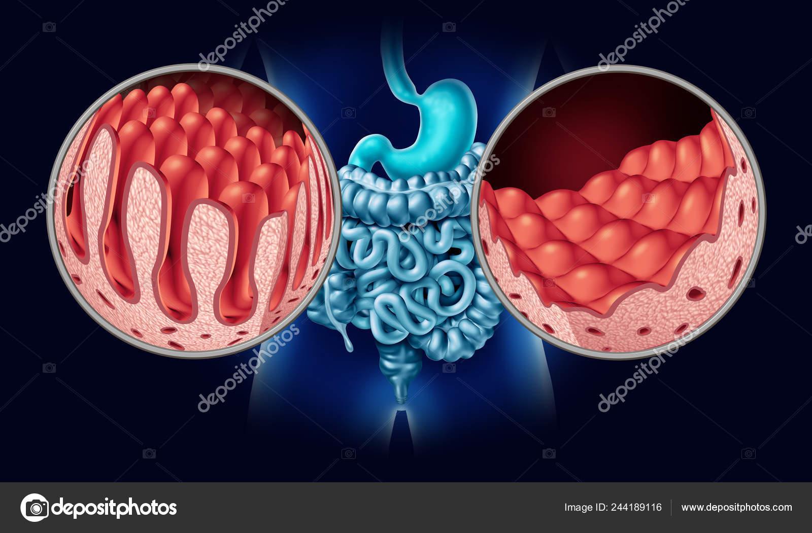 Celiac Coeliac Disease Intestine Anatomy Medical Concept Normal