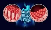 Onemocnění celiakií nebo celiakie jako střevo anatomie lékařské koncepce s normální klků a poškozené malé střevní sliznice jako autoimunitní onemocnění trávicí soustavy s dvojtečkou a žaludek jako 3d obrázek.