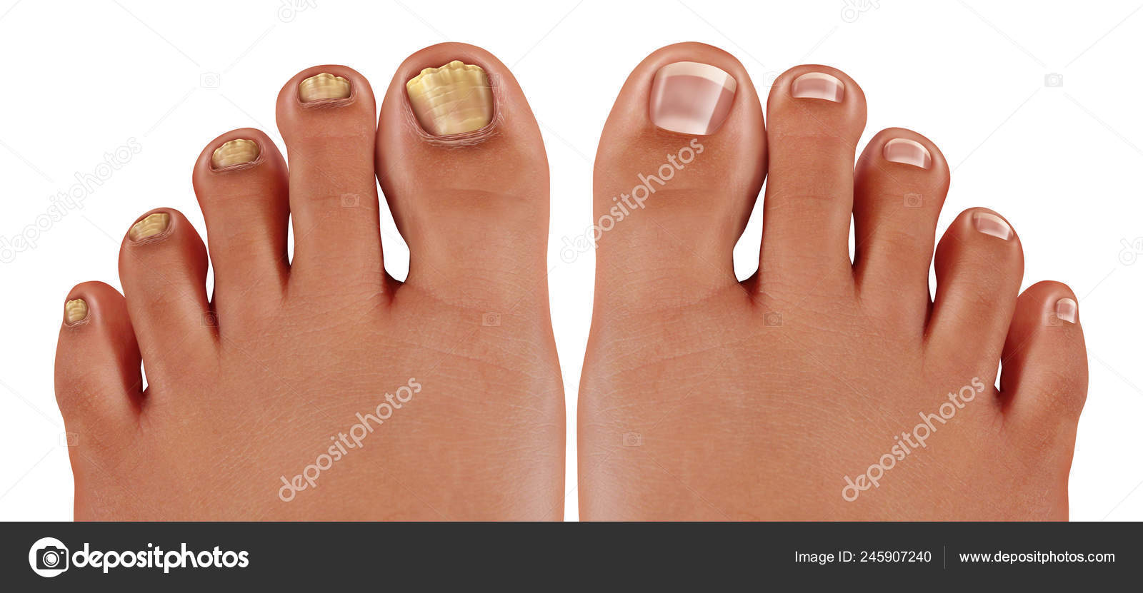 Onychomycosis Fungal Nail Infection Tinea Unguium Infected Foot ...