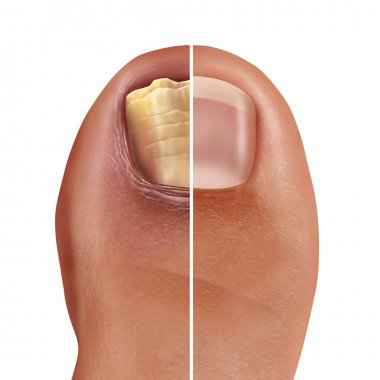 Fungal nail infection and onychomycosisor tinea unguium as an infected foot toenail or toe nail with damaged unhealthy and healthy human anatomy in a 3D illustration style.