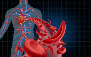 Sickle cell cardiovascular heart blood circulation and anemia as a disease with normal and abnormal hemoglobin in a human artery anatomy as a medical illustration concept with 3D illustration elements.