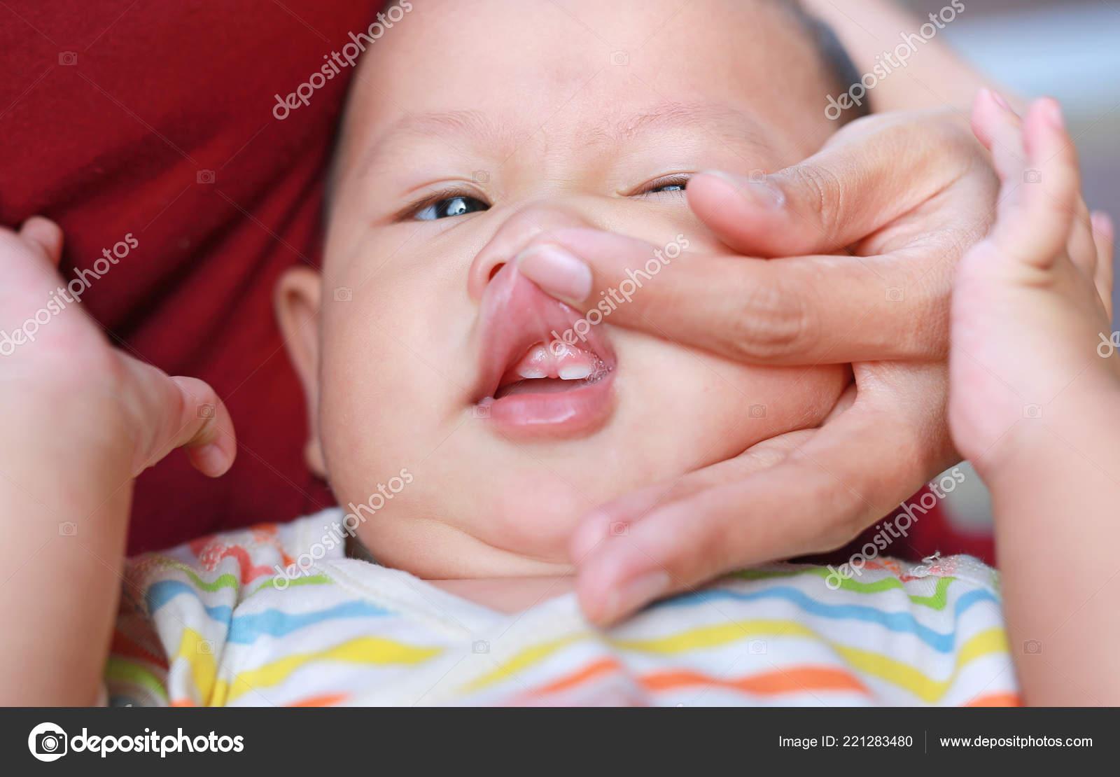Close Mutter Händen Mund Offen Babys Erste Zähne Untersuchen