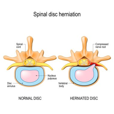 Spinal disc herniation. Back pain. Normal disc and spinal disc herniation in cervical vertebrae. Vector illustration for your design, educational, biology, scientific, and medical use.