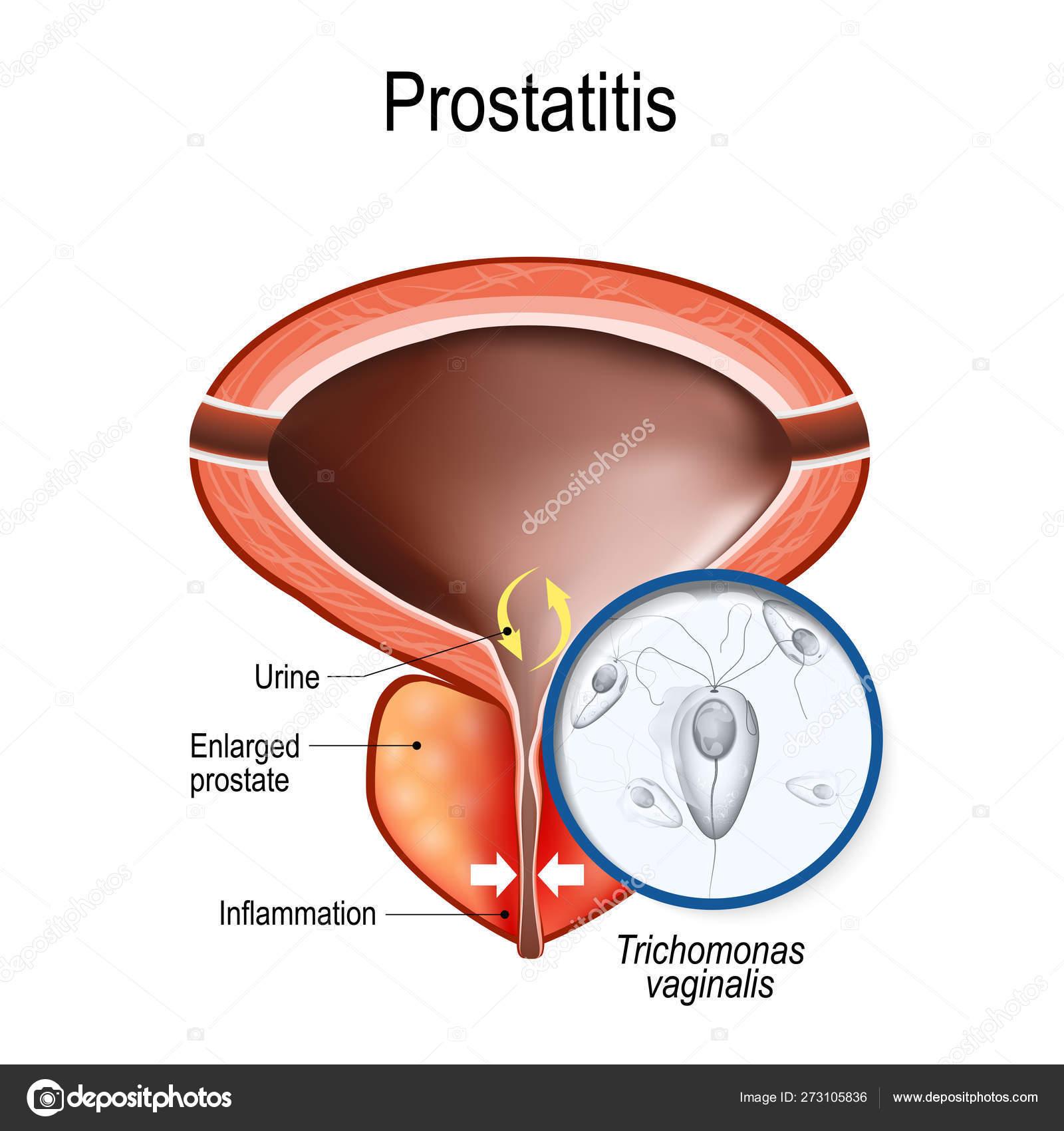 curador de prostatitis de uretritis