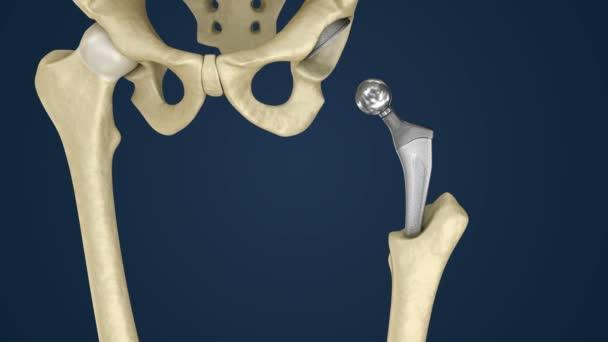 3d анатомия тазобедренного сустава розовые папулы округлой формы на внешней стороне локтевых суставов