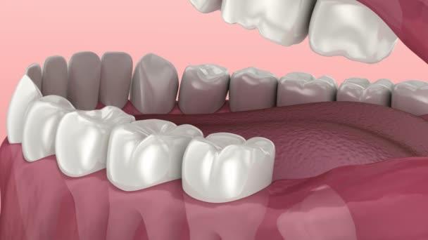 Weisheitszahnproblem. medizinisch korrekte 3D-Animation der Zähne