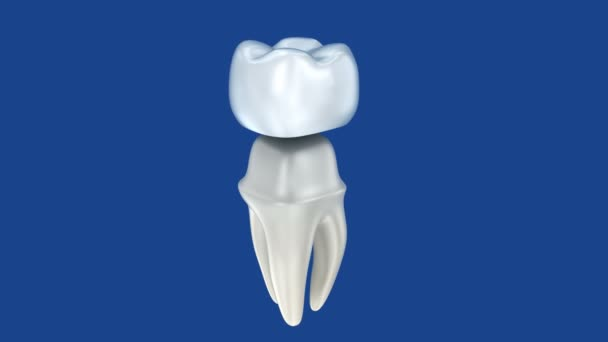 Dental crowns and tooth, 3d Concept animation