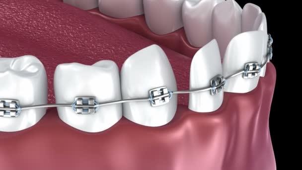 Zuby se složenými závorkami proces zarovnání. 3D animace.