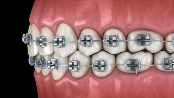 Zähne mit Metall und klare Zahnspangen im Zahnfleisch. medizinisch korrekte 3D-Animation